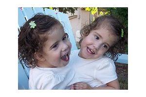 心臓が1つの結合双生児姉妹(米アリゾナ)