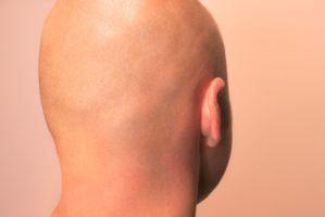 成功者の顔は脳で作られる【7】小さい耳が財を成す
