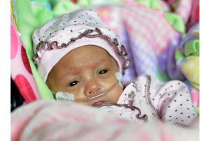 生存率2%、世界最軽量269gの女の子が無事退院